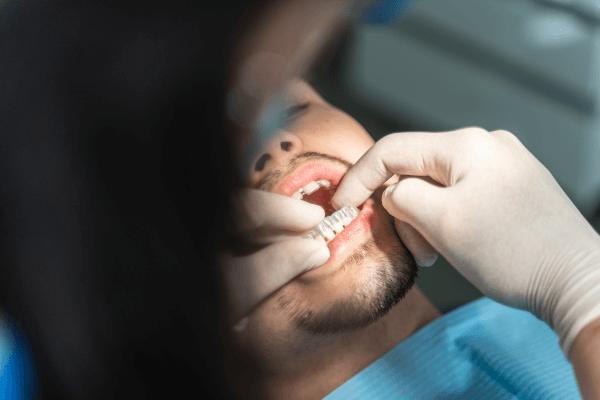 Clinica Dentária no Porto - Invisalign