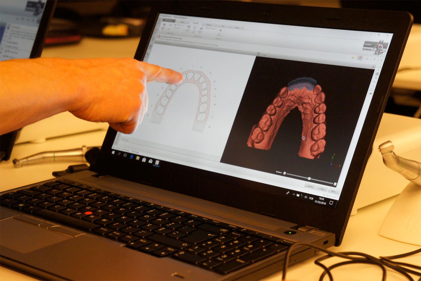 Formação em Implantes