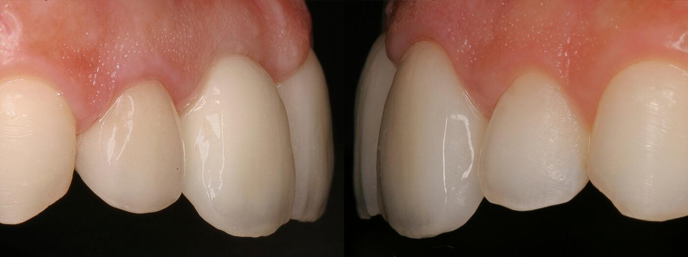Reabilitação com implantes e coroas em cerâmica