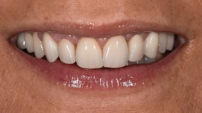 Caso Clínico assimétrico e bem integrado em especialidade de medicina dentária