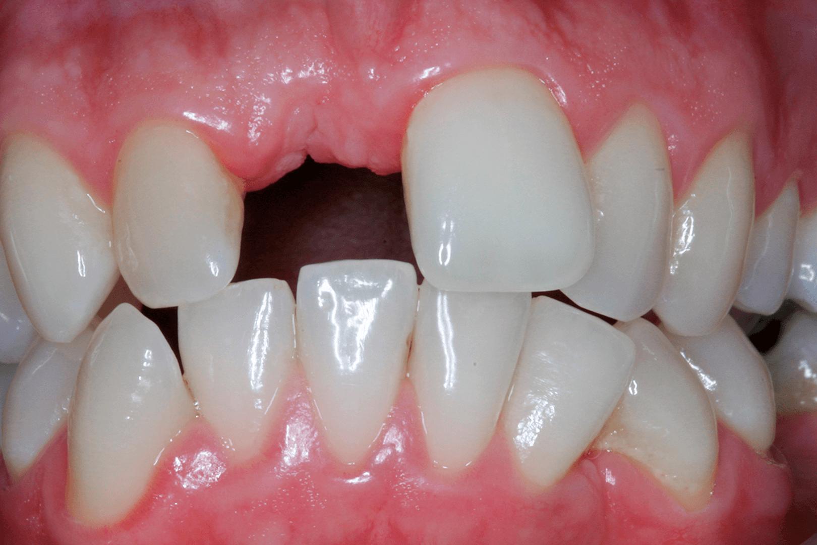 Clinica Pinheiro Torres - Perda parcial de massa óssea vestibular