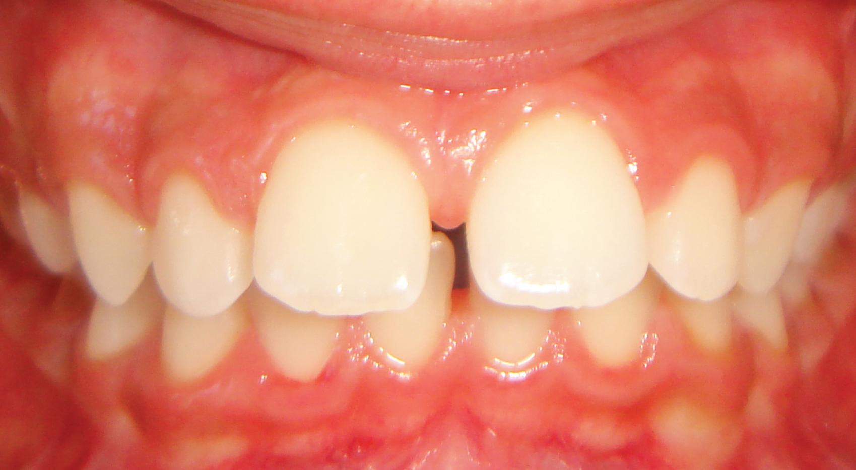 Ortodontia - Avanço da dentição superior