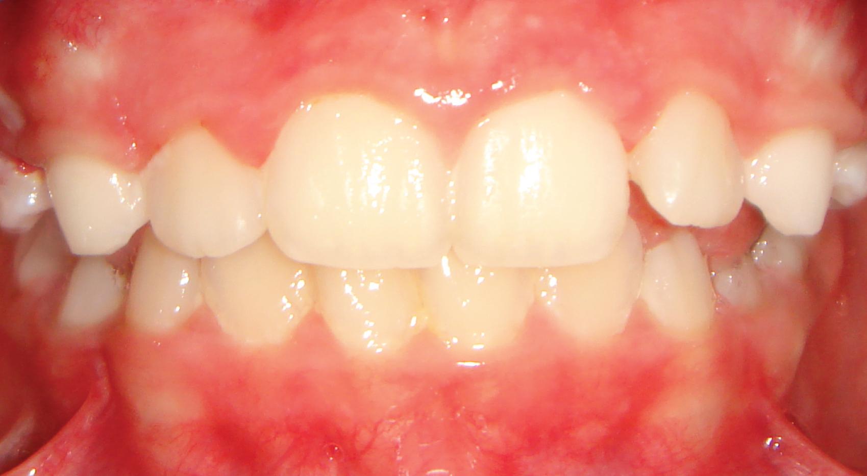 Ortodontia - Dentição superior recuada em relação à inferior