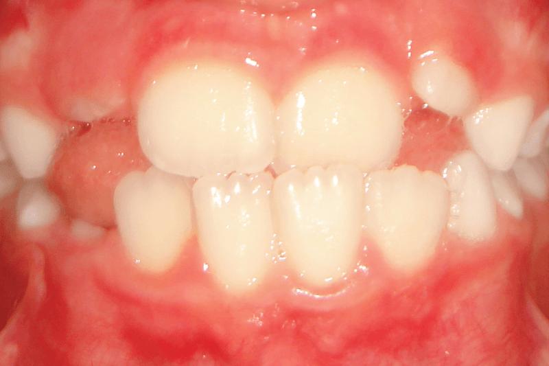 Ortodontia_IA_CasoClinico_destaque
