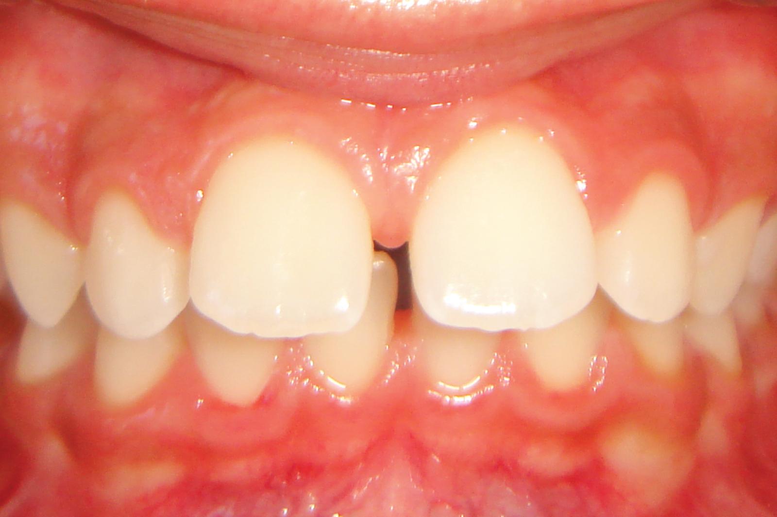 Ortodontia - Avanço da dentição superior Destaque