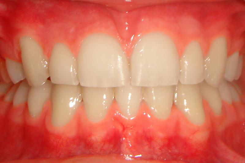 Ortodontia - Sobremordida, retroinclinação